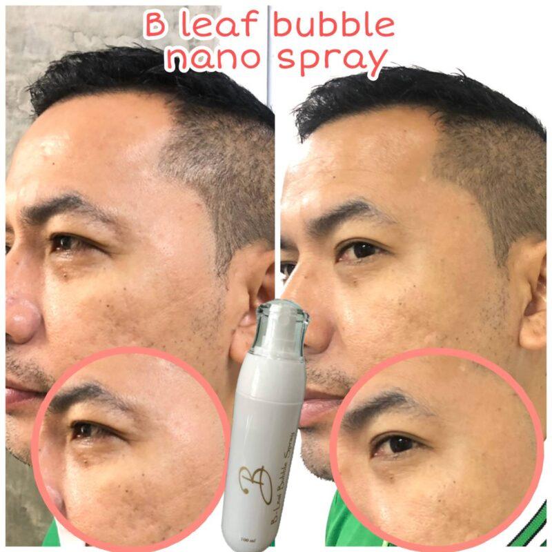 bubble spray Hokkaido chory